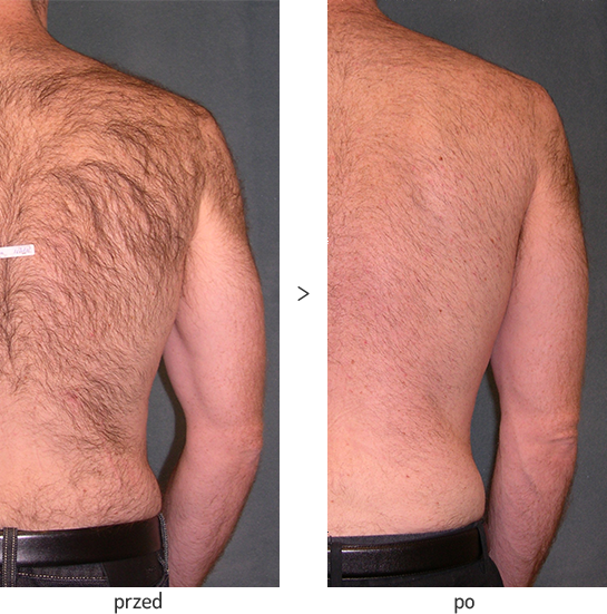 Usuwanie włosów z pleców laserem diodowym Vectus - efekt przed i po