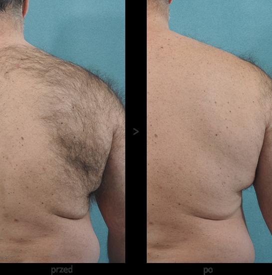 Depilacja pleców laserem diodowym Vectus - efekt przed i po