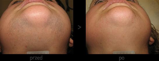 Laserowe usuwanie włosów z brody i szyi - efekt przed i po