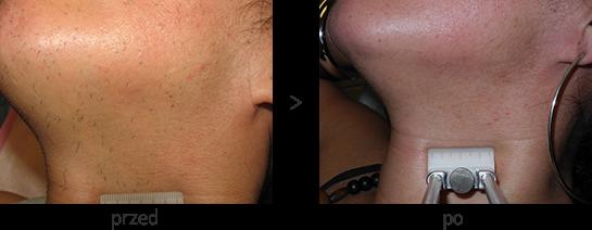 Usuwanie włosów z brody i szyi laserem diodowym Vectus - efekt przed i po