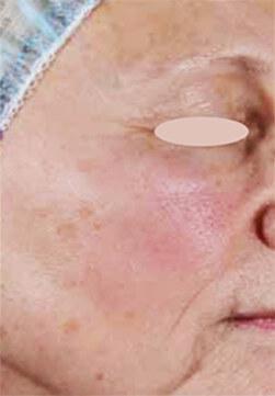 Kobieta przed zabiegiem laserem frakcyjnym Emerge