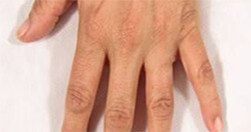 Efekty zabiegu na dłonie Trilipo Legend - efekt po