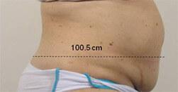 Redukcja tkanki tłuszczowej Trilipo Legend - efekt po zabiegu