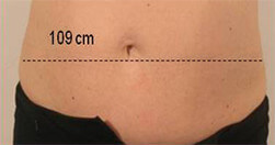Redukcja tkanki tłuszczowej Trilipo Legend - przed zabiegiem