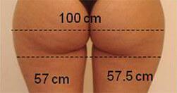 Ujędrnienie pośladków i redukcja cellulitu Trilipo Legend - przed zabiegiem