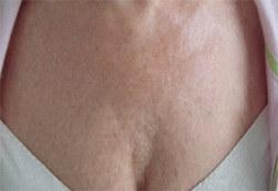 Efekt zabiegu Voluderm Legend ujędrniającego skórę - piersi kobiety po zabiegu