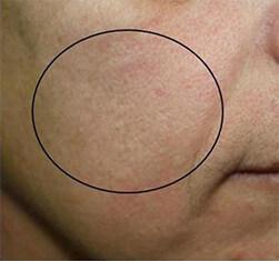 Efekty zabiegu geneO -  odmłodzenie skóry twarzy - efekt przed