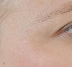Efekty zabiegu geneO -  odmłodzenie skóry twarzy - efekt po
