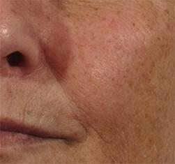 Efekty zabiegu geneO - rozjaśnienie i odżywienie skóry twarzy - efekt przed